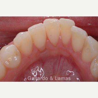 25-34 year old woman treated with Gum Lift before 3075237