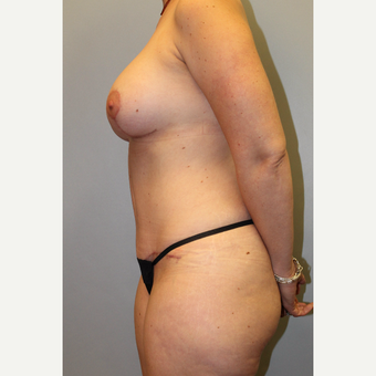 35-44 year old woman treated with Mommy Makeover after 3588598