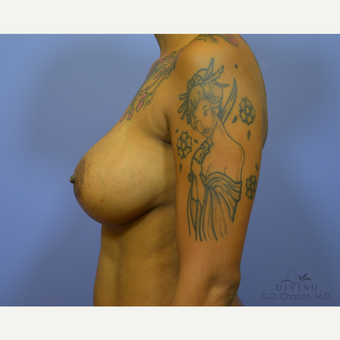 35-44 year old woman treated with Breast Augmentation before 3329348