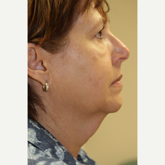 55-64 year old woman treated with Facelift before 3849378