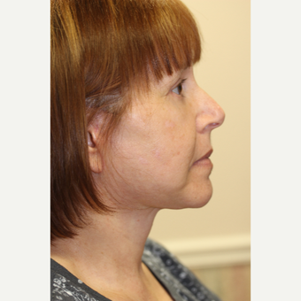 55-64 year old woman treated with Facelift after 3849378