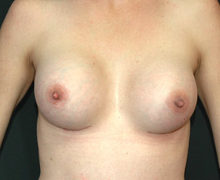 Breast Implants after 3544997