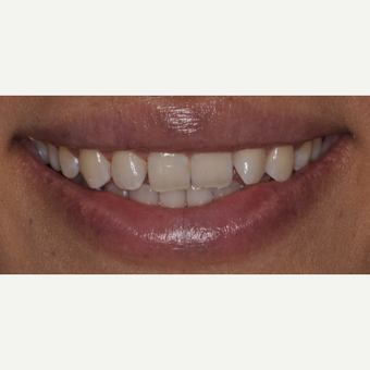 27 year old woman treated with Smile Makeover before 3543248