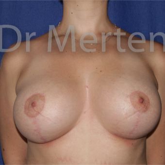 25-34 year old woman treated with Breast Lift with Implants after 3592330