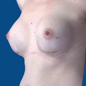25-34 year old woman treated with Breast Augmentation after 3848604