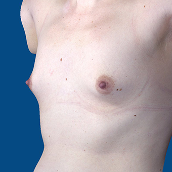 25-34 year old woman treated with Breast Augmentation before 3848604
