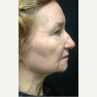 75 and up year old woman treated with Ultherapy after 3383033