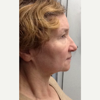 75 and up year old woman treated with Ultherapy before 3383033