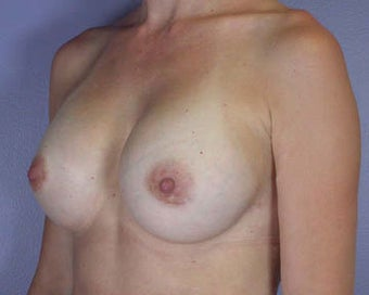 Breast Augmentation after 281428