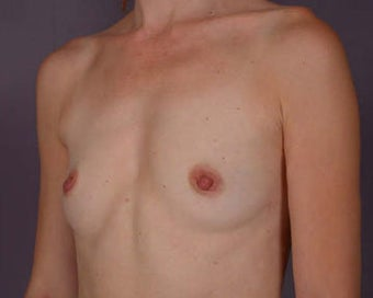 Breast Augmentation before 281428