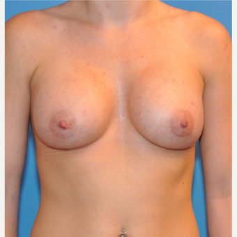 Breast Augmentation after 3377423