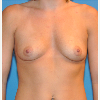 Breast Augmentation before 3377423