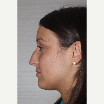 18-24 year old woman treated with Rhinoplasty before 3255574