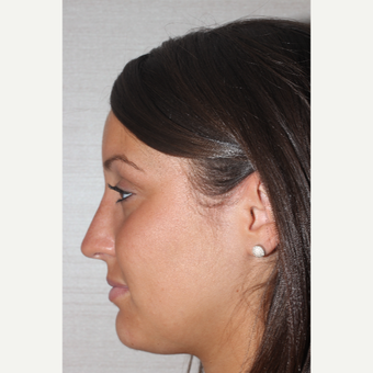 18-24 year old woman treated with Rhinoplasty after 3255574