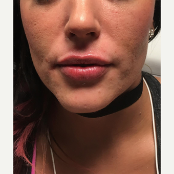25-34 year old woman treated with Juvederm after 3684380