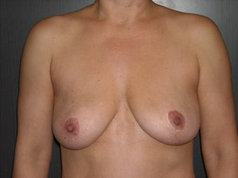 35-44 year old woman treated with Breast Implant Removal after 1698723