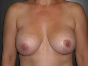 35-44 year old woman treated with Breast Implant Removal before 1698723