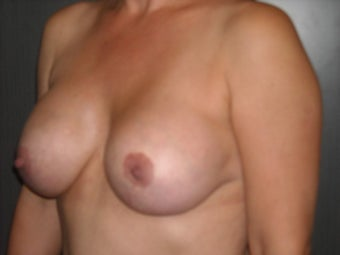 35-44 year old woman treated with Breast Implant Removal 1698723