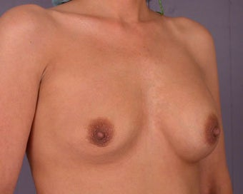 Breast Implant Correction before 281309