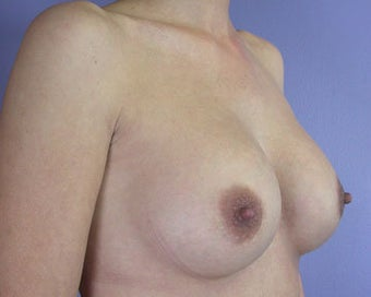 Breast Implant Correction after 281309