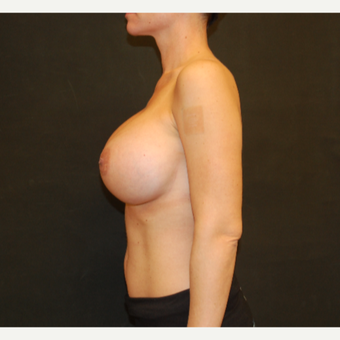 35-44 year old woman treated with Breast Implant Revision after 3810080