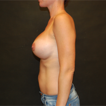 35-44 year old woman treated with Breast Implant Revision before 3810080