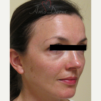 35-44 year old woman treated with Voluma in cheeks before 3222812