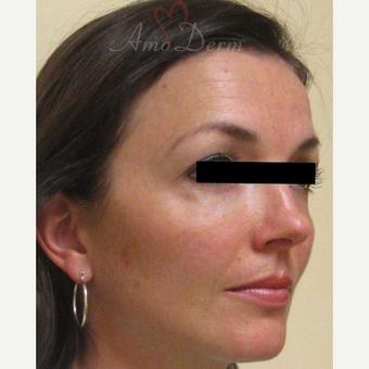 35-44 year old woman treated with Voluma in cheeks after 3222812