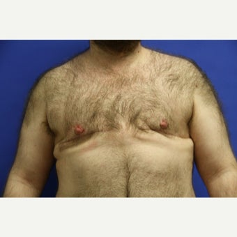 38 year old trans man treated with FTM Chest Masculinization Surgery after 2097038