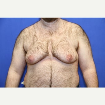 38 year old trans man treated with FTM Chest Masculinization Surgery before 2097038