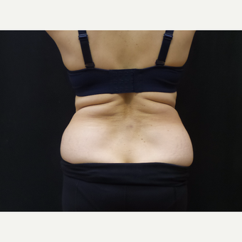65 year old woman treated with SculpSure before 2767548