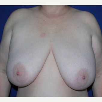 49 year old lady with enlarged and hypertophic breasts. before 2983264