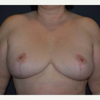 49 year old lady with enlarged and hypertophic breasts. after 2983264