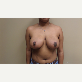 25-34 year old woman treated with Breast Reduction after 3548783