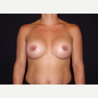 25-34 year old woman treated with Breast Implants after 3439737