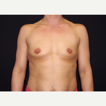 25-34 year old woman treated with Breast Implants before 3439737