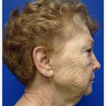 65-74 year old woman treated with Pearl Laser before 3506441