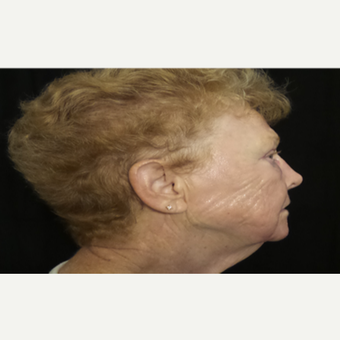65-74 year old woman treated with Pearl Laser after 3506441