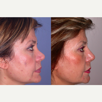 55-64 year old woman treated with Revision Rhinoplasty after 3521304