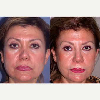 55-64 year old woman treated with Revision Rhinoplasty before 3521304