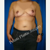 25-34 year old woman treated with Breast Reduction after 3006581