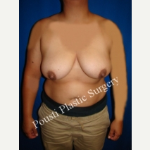 25-34 year old woman treated with Breast Reduction before 3006581