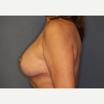 55-64 year old woman treated with Breast Implant Revision after 3061220
