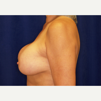 55-64 year old woman treated with Breast Implant Revision before 3061220