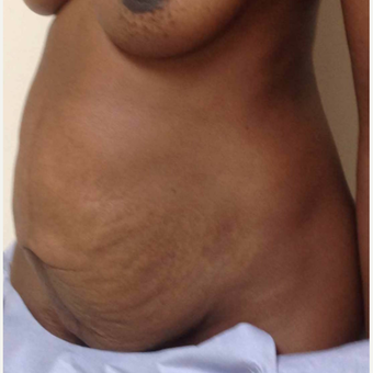 Tummy Tuck for this 35 Year Old Woman before 3092511