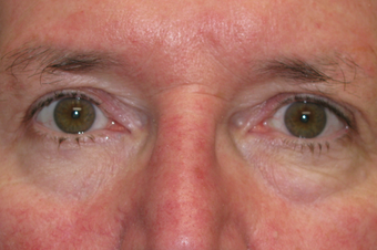 Upper blepharoplasty and browpexy after 1307534