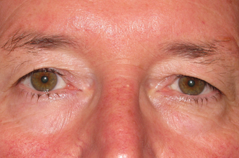Upper blepharoplasty and browpexy before 1307534