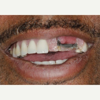 55-64 year old man treated with All-on-4 Dental Implants 1990695