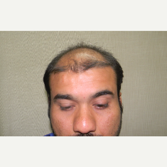 35-44 year old man treated with FUE Hair Transplant before 3337349