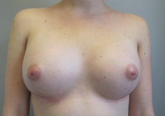 Breast Augmentation after 1060606